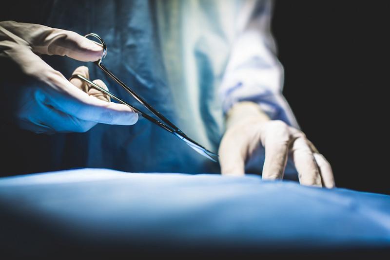 Медицинские остроконечные ножницы